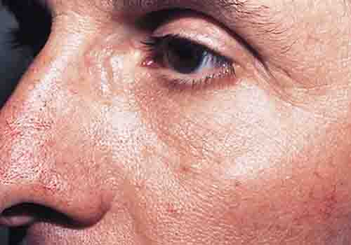 rosacea stage 1 - 500px x 350px - example 1