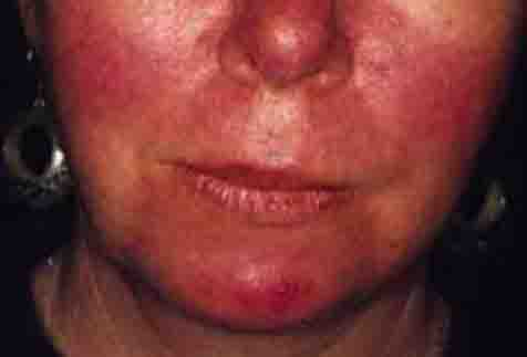 rosacea stage 2 - 476px x 323px - example 2