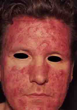 rosacea stage 3 - 266px x 379px - example 3